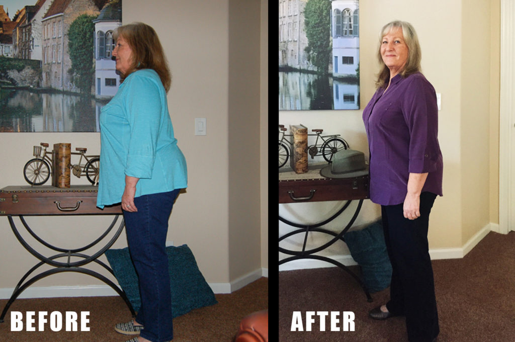 lynette-before-after-side